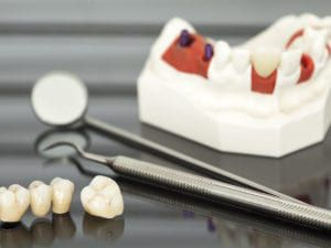 Dental Crown and Bridge Model