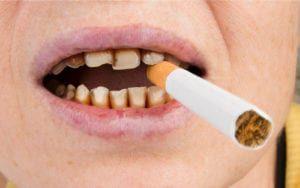 Teeth damaged by tobacco use