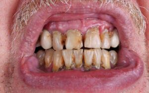 Mouth showing periodontal disease