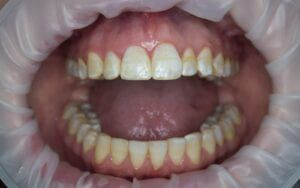 Teeth with yellow stains from excessive fluoride consumption